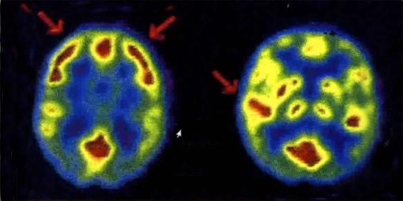 mri-brain-scan-c